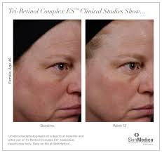 makeup artist portfolio sle resumes 2 muac retinol before and after 46 year old woman 3 artists