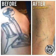 12 best tattoo removal by south west laser removal and mj driver