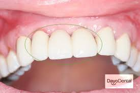 Bridge Dental Cost Estimate by Dental Implants In Mexico What You Need To Cost Process