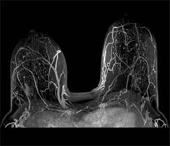 mri guided biopsy breast about our imaging technology southern tier imaging