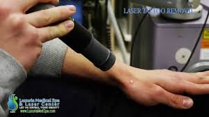 laser tattoo removal www luxuriamedspa com egg harbor township nj