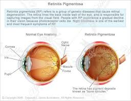 Symtoms Of Blindness 30 Best Ideas For The Blind Images On Pinterest Blind Visual