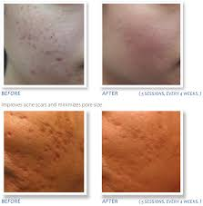 microneedling evolvmd laser tattoo removal microdermabrasion