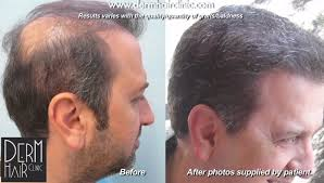 how thick is 1000 hair graft hair transplant repair using ugraft dermhair clinic los angeles