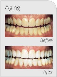 teeth whitening sydney ryde zoom whitening gladesville