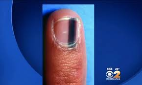you can use your fingernails to detect cancer