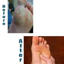 How Do You Get Planters Warts by Plantar Warts Treatment Burlington Wilson Foot Health Clinic