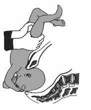 accouchement par le siege accouchement par le siège miss frottis