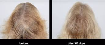 hair growth after chemo pictures hair growth products after chemo