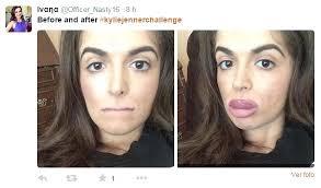 Challenge De Que Trata Jenner Challenge La Peligrosa Moda De Engrosarse Los Labios