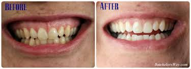 crest supreme whitening strips batchelors way get your smile ready with crest whitestrips
