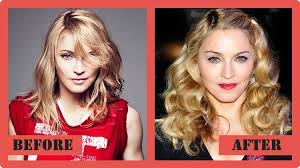 hairstyles that cover face lift scars 101 celebrities before and after plastic surgery starfluff