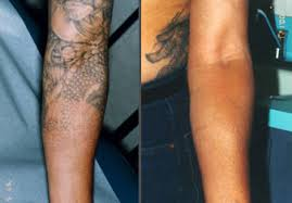 tattoo removal frequently asked questions frequently asked questions tattoo removal archives winterpark laser