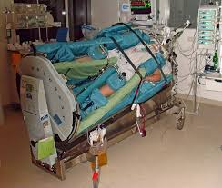 rotating hospital bed file rotationsbett jpg wikimedia commons