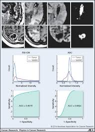 diffusion weighted imaging in cancer physical foundations and