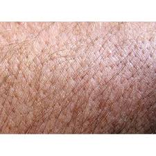 pubic hair on thigh how to remove an ingrown hair permanently our everyday life