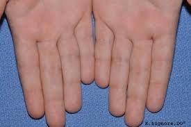 How Do You Get Planters Warts by Dermatology Tinley Park Il Robert J Signore D O P C