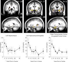 medial temporal lobe activity during retrieval of semantic memory