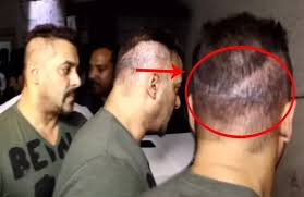 aamir khan hair transplant where did salman khan get his hair transplant quora