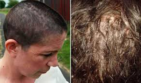 glue extensions left with bleeding scalp after hair extensions applied with