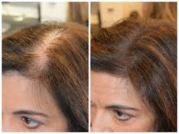 Thin Hair Extensions Before And After by Instant Coverage Of Roots And Thinning Patches U2013 New Product