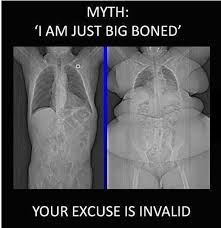 Xray Meme - big boned excuse your argument is invalid know your meme