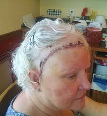 can you color hair after brain surgery surgery brutally honest mom