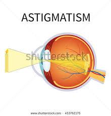 Anatomy Of The Eye Illustration Astigmatism Astigmatism Blurred Vision Anatomy Stock