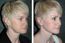 hairstyles that cover face lift scars deep plane facelift best deep plane facelift surgeon america nyc
