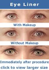eye beauty and cosmetic eye care permanent makeup