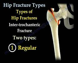 hip fractures types and fixation everything you need to know