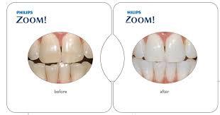 Does Laser Teeth Whitening Work Zoom Teeth Whitening Delhi Teeth Whitening Delhi Laser Teeth