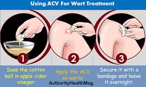 How To Remove Planters Warts by Does Apple Cider Vinegar For Warts Removal Work