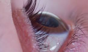Can Cataracts Cause Blindness Alcohol Can Seriously Impact Your Eyes Heavy Drinking Can Cause