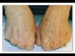 skin treatments portland oregon cascade tattoo removal and