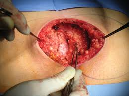 pilonidal cyst tension free primary closure with autologous platelet gel versus