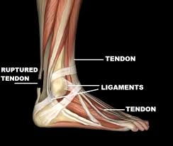 High Ankle Sprain Anatomy Survival Sprains Survival Medicine Doom And Bloom Tm Doom