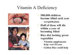 Becoming Blind Text Extracted From The World Food Problem Leathers U0026 Foster Ppt