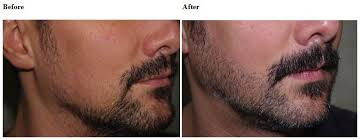 hair transplant costs in the philippines are hipsters to blame for a rise in facial hair transplants