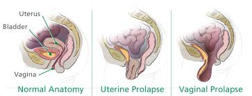 woman s virgina 3 natural remedies to prevent vaginal prolapse vagifirm natural