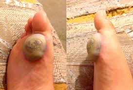 How To Remove Planters Warts by Wart Removal Process Images Reverse Search