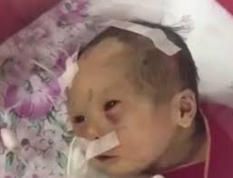 Newborn Baby Pictures Newborn Baby Fighting For Life With Broken Bones And Brain Damage