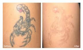 laser tattoo removal salt lake city steven jepson m d