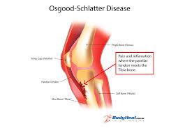 Diagram Of Knee Anatomy 13 Best Posterior Horn Meniscal Tear Images On Pinterest Horn