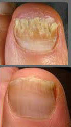 12 home remedies to get rid of nail fungus fast naturally