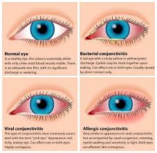 what causes eyes to be sensitive to light pink eye conjunctivitis symptoms treatments and prevention