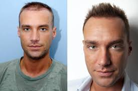 Signs Of Hair Loss Male How Does A Hair Transplant Work And Which Celebrities Have Had The