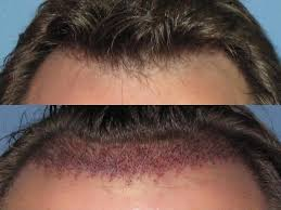 hair transplant america who are optimal candidates for hair transplant dense packing