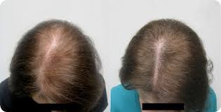 images of hair natural hair loss treatment hair growth bioscor international