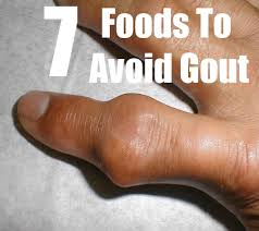 foods to avoid for gout foods not to eat when you have gout